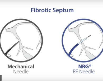 NRG RF Needle Animation