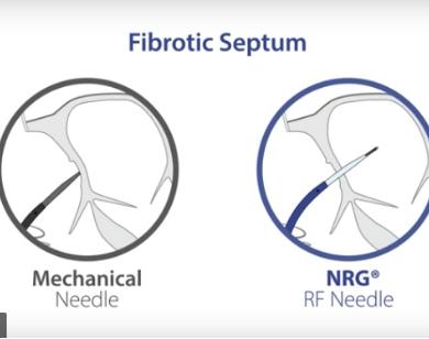 NRG RF Needle Animation