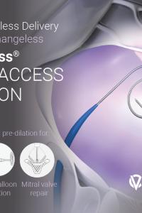 VersaCross® LARGE ACCESS SOLUTION Flyer